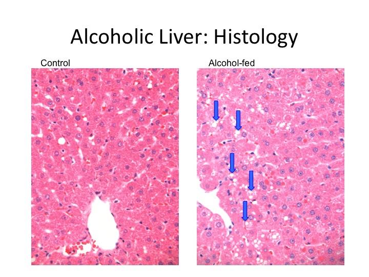 liver saving saturated fats principleintopractice