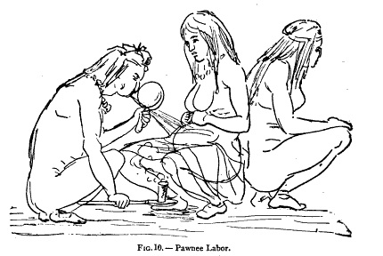 The squatting tradition of the Pawnee Native Americans- the laboring mother squats with her back to a female assistant while someone (in this case a shaman) assists with the delivery. This position (with an assistant acting as a back support) was apparently popular in many cultures around the world.