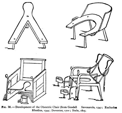 "The ""progression"" of the obstetrical chair. The first stool is not unlike some modern  birthing stools, while the final incarnation is not too far displaced from the modern delivery-room bed."